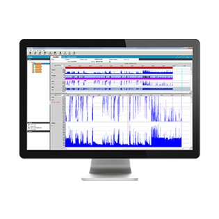resscan-patient-therapy-management-software-results-resmed
