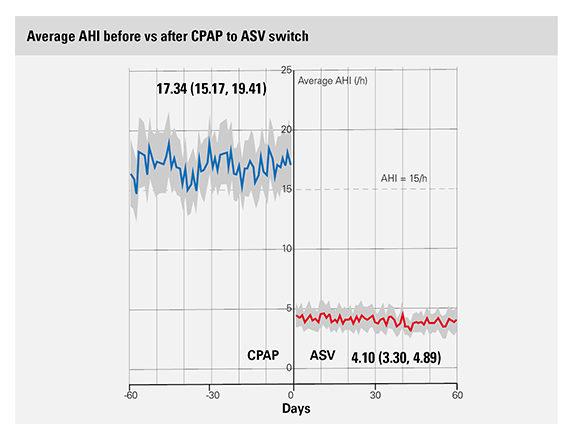 big-data-ASV-switch-AHI-ResMed